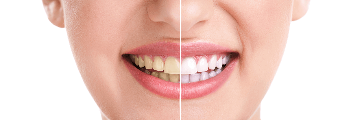 Teeth Whitening in Trumbull, Connecticut